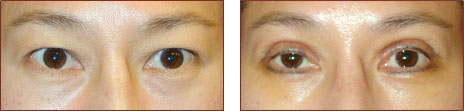 Asian Blepharoplasty Before and After