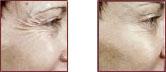 BOTOX Cosmetic Photos