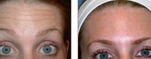 BOTOX Cosmetic Photos