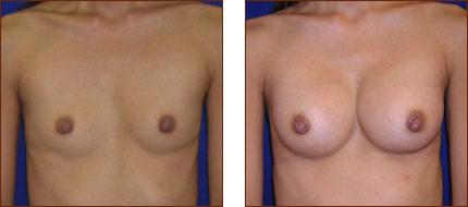 Breast Augmentation Saline 3