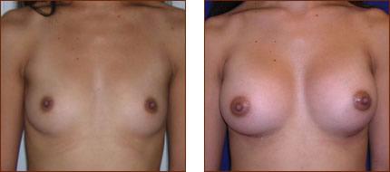 Breast Augmentation Saline 4