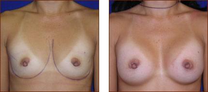 Breast Augmentation Saline 5