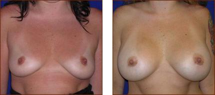 Breast Augmentation Saline 6