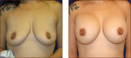 Breast Augmentation Saline 7