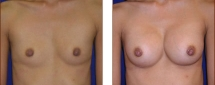 Breast Augmentation Saline 3