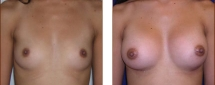 Breast Augmentation Saline 4