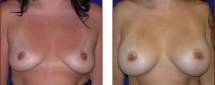 Breast Augmentation Saline 6