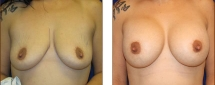 Breast Augmentation Saline 7