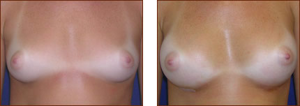 Breast Augmentation Silicone 1