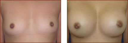 Breast Augmentation Silicone 2