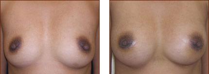 Breast Augmentation Silicone 4