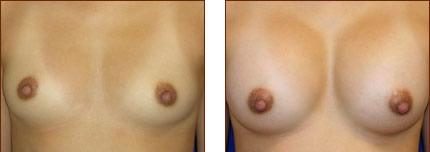 Breast Augmentation Silicone 5