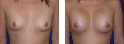 Breast Augmentation Silicone 6