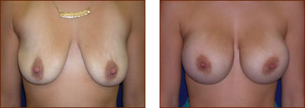 Breast Augmentation Silicone 7