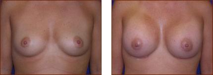 Breast Augmentation Silicone 8