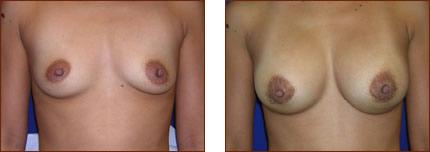 Breast Augmentation Silicone 9
