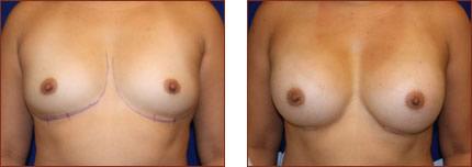 Breast Augmentation Silicone 11
