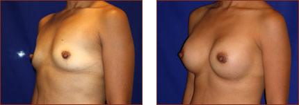 Breast Augmentation Silicone 12