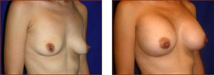 Breast Augmentation Silicone 13