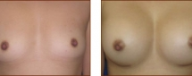 Breast Augmentation Silicone 2