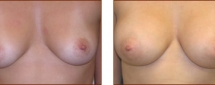 Breast Augmentation Silicone 3