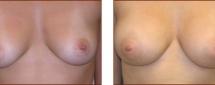 Breast Augmentation Silicone 3