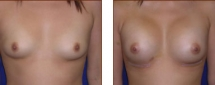 Breast Augmentation Silicone 6