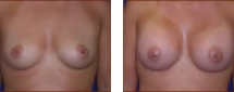 Breast Augmentation Silicone 8