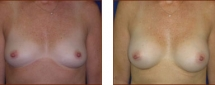 Breast Augmentation Silicone 10