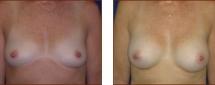 Breast Augmentation Silicone 10