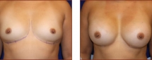 Breast Augmentation Silicone 11