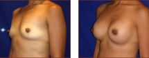 Breast Augmentation Silicone 12
