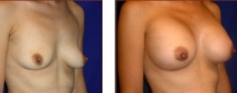 Breast Augmentation Silicone 13