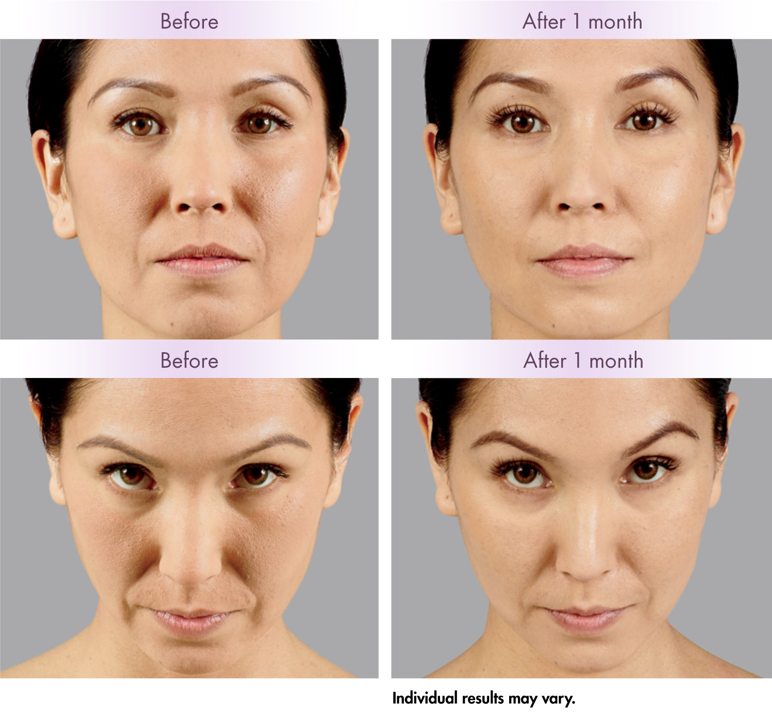 Dermal Fillers in Honolulu Hawaii | Robert Peterson MD