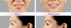 Dermal Fillers Photos