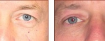 Eyelid Surgery Patient