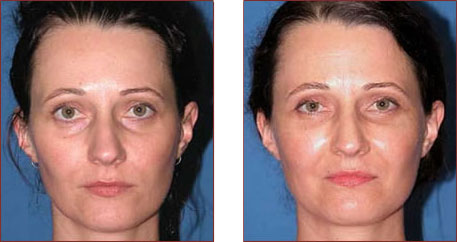 Fat injection for deep facial lines