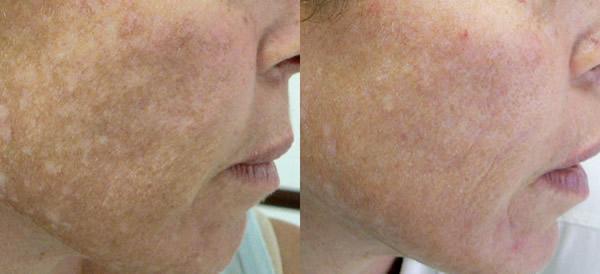 Laser Skin Resurfacing Photos