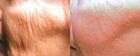 Laser Skin Resurfacing Photos