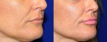 Lip Enhancement 2