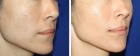 Lip Enhancement 1