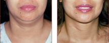 Neck Liposuction Photos