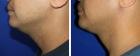 Neck Liposuction Photos