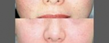 Photofacial Before and After