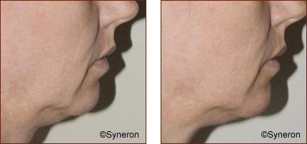 ReFirme Skin Tightening Patient