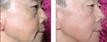 ReFirme Skin Tightening Patient