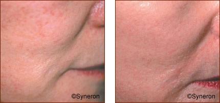 Skin Rejuvenation Photos