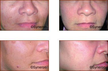Skin Rejuvenation Photos