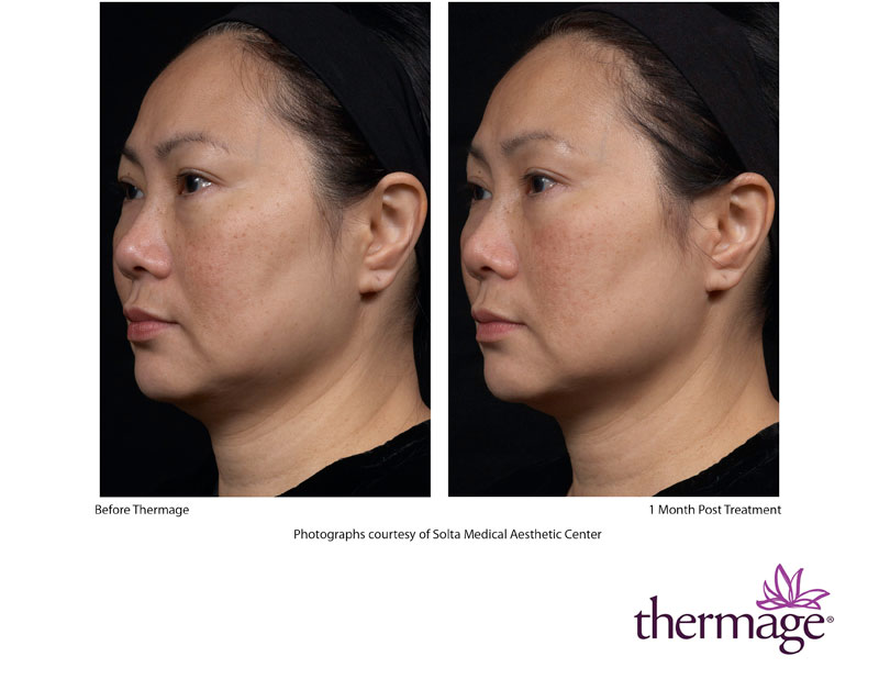 Thermage Photos