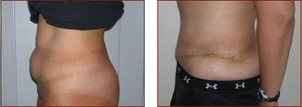 Tummy Tuck Photos